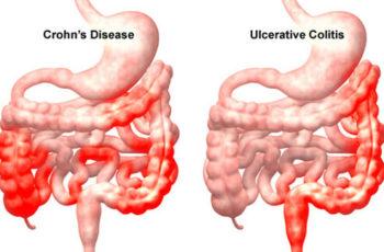 Colite Ulcerativa e Doença de Crohn