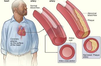 Dieta, Colesterol e Lipoproteínas Explicados em Termos Humanos